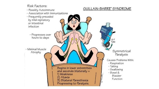 the-guillain-barre-syndrome