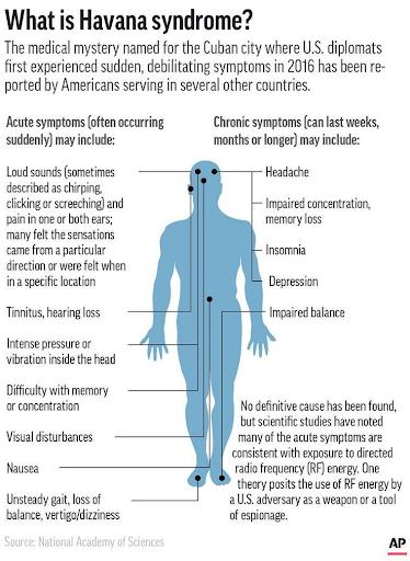 havana-syndrome